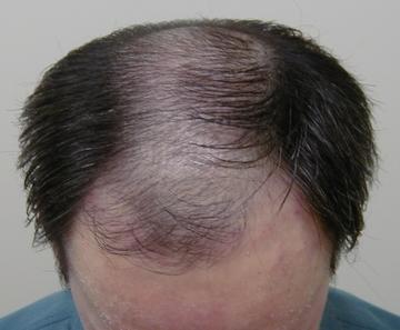 佐井泌尿器科・皮フ科クリニックの薄毛治療・AGA・発毛の症例写真[ビフォー]