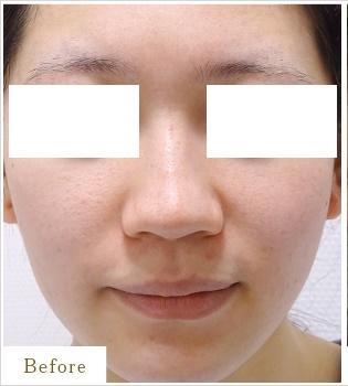 表参道スキンクリニックの鼻の整形の症例写真[ビフォー]