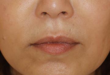 すなおクリニックの顔の整形(輪郭・顎の整形)の症例写真[アフター]