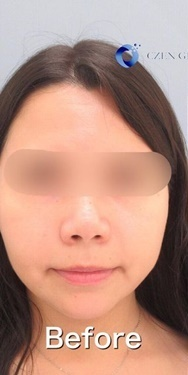 CZEN GINZA CLINIC (シゼン ギンザ クリニック)の口元・唇の整形の症例写真[ビフォー]