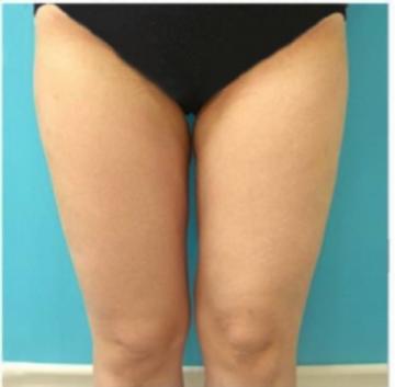 東京美容外科の脂肪吸引の症例写真[アフター]