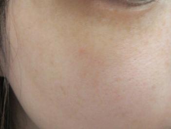 ヴィーナスヴェルサ 10回(5回×2クール)の症例写真[アフター]