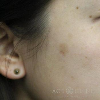 エースクリニックのシミ治療(シミ取り)・肝斑・毛穴治療の症例写真