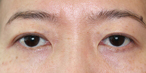 大塚美容形成外科の目・二重の整形の症例写真[アフター]