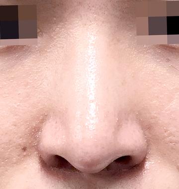 湘南美容クリニック上野院の鼻の整形の症例写真[アフター]