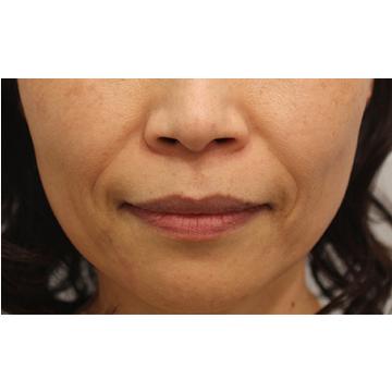 RDクリニックの顔のしわ・たるみの整形(リフトアップ手術)の症例写真[ビフォー]