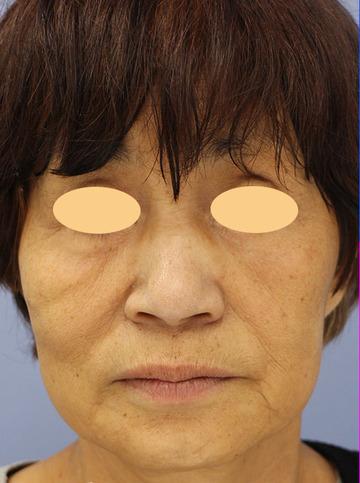 湘南美容クリニック 大阪堺東院の顔のしわ・たるみの整形(リフトアップ手術)の症例写真[ビフォー]