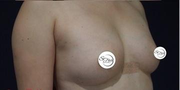 S.T style クリニック (エスティスタイルクリニック)の豊胸・胸の整形の症例写真[アフター]