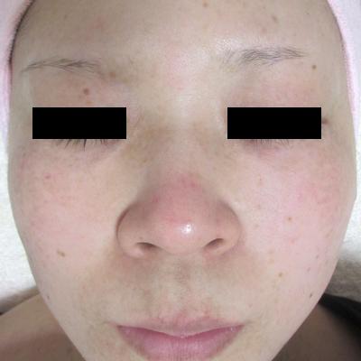 肝斑、ADM治療:レーザートーニング、Qスイッチヤグなど[アフター]