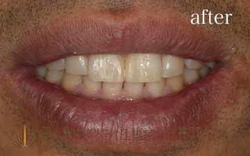 肌と歯のクリニック 東京ベイ幕張の矯正歯科の症例写真[アフター]