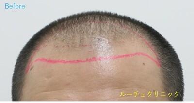 ARTAS(アルタス)9x植毛術の症例写真[ビフォー]
