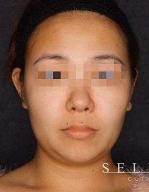 SELECT CLINIC (セレクトクリニック)の脂肪吸引の症例写真[ビフォー]