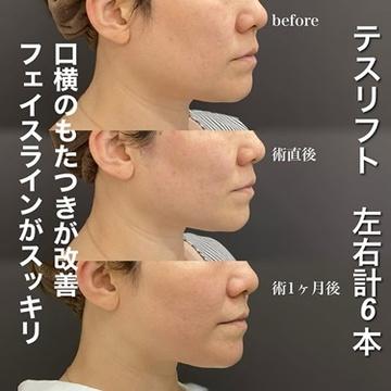 ロレシー美容クリニック 心斎橋駅前院の顔のしわ・たるみの整形の症例写真