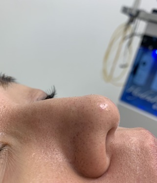 トキコクリニック 京都四条院のシミ治療(シミ取り)・肝斑・毛穴治療の症例写真[ビフォー]