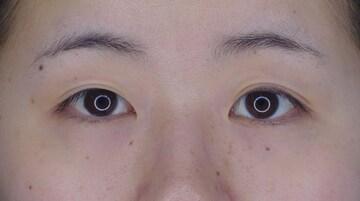 湘南美容クリニック 大阪梅田院の目・二重の整形の症例写真[ビフォー]