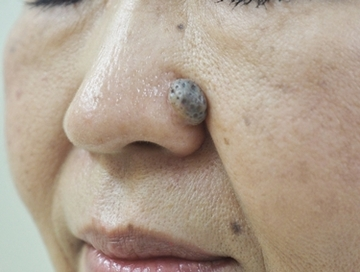 タウン形成外科クリニックのほくろ除去・あざ治療・イボ治療の症例写真[ビフォー]