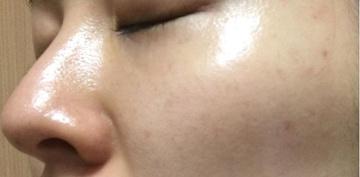 ドクター松井クリニックのシミ治療(シミ取り)・肝斑・毛穴治療の症例写真[アフター]