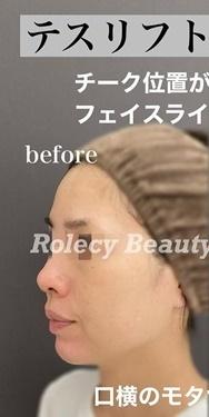 タトゥー除去(切除法) 術後1ヶ月の症例写真[ビフォー]