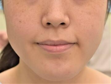 心斎橋コムロ美容外科クリニックの輪郭・顎の整形の症例写真[ビフォー]