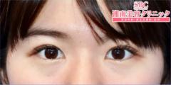 湘南美容クリニック奈良院の目・二重の整形の症例写真[アフター]
