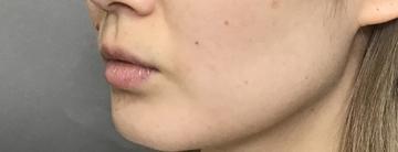 TCB東京中央美容外科 堺院の口もと、唇の整形の症例写真[ビフォー]