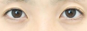 湘南美容クリニック 浜松院の目・二重整形の症例写真[ビフォー]