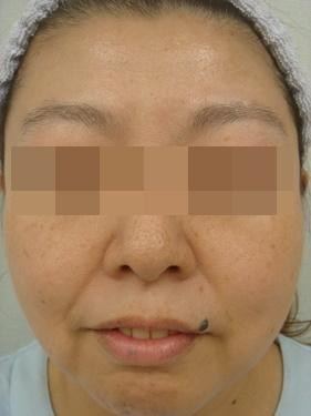 ゆきおかクリニックのシミ治療(シミ取り)・肝斑・毛穴治療の症例写真[ビフォー]