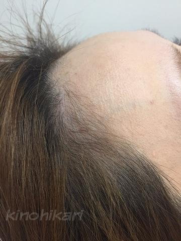樹のひかり 形成外科・皮ふ科のアートメイクの症例写真[ビフォー]