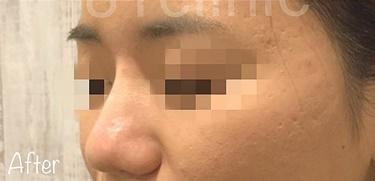 鼻筋・鼻先形成(糸)の症例写真[アフター]