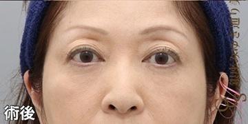 銀座みゆき通り美容外科 大阪院の目元の整形、くま治療の症例写真[アフター]