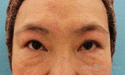 眉毛下切開法による眼瞼下垂治療の症例写真[アフター]
