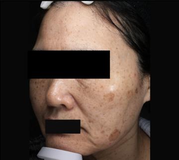 熊本かよこクリニックのシミ治療(シミ取り)・肝斑・毛穴治療の症例写真[ビフォー]