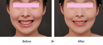 の口もと、唇の整形の症例写真
