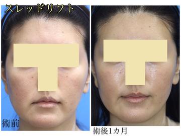 樹のひかり 形成外科・皮ふ科の顔のしわ・たるみの整形の症例写真
