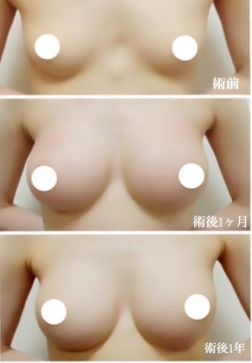 ジョウクリニックの豊胸・胸の整形の症例写真