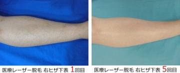 フェミークリニックの医療レーザー脱毛の症例写真[アフター]