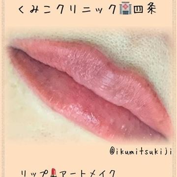 くみこクリニック 京都四条烏丸院のアートメイクの症例写真
