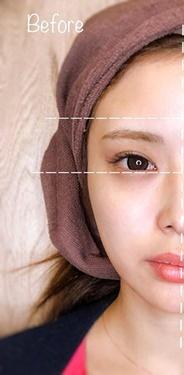 81clinicのシワ・たるみ(照射系リフトアップ治療)の症例写真[ビフォー]