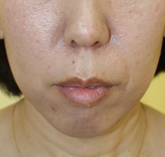 千葉中央美容形成クリニックの輪郭・顎の整形の症例写真[ビフォー]