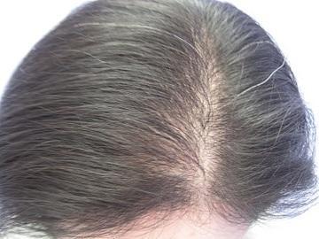 札幌中央クリニックの薄毛治療・AGA・発毛の症例写真[アフター]