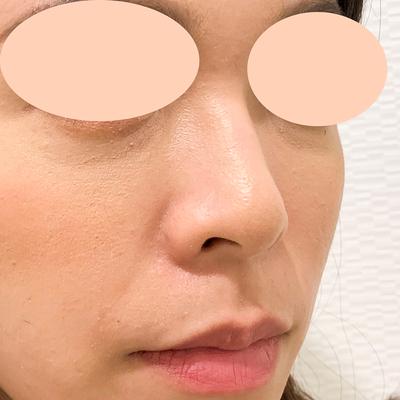 【鼻根~鼻先まで注入】ジャスミンノーズ(30代女性)の症例写真[ビフォー]