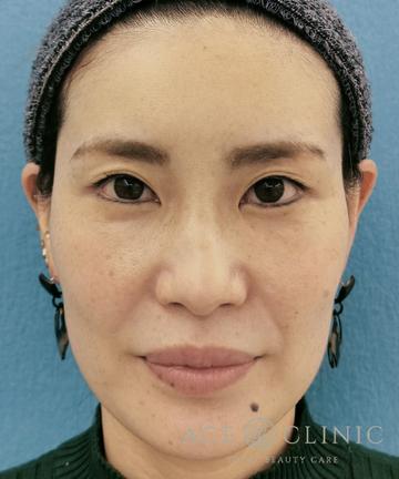 エースクリニック 名古屋院の顔のしわ・たるみの整形の症例写真[アフター]