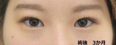 埋没法+脱脂で、パッチリ瞼に変身の症例写真[アフター]