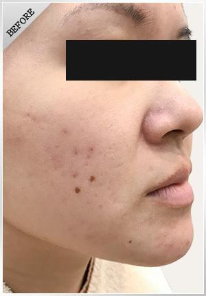 銀座肌クリニックのニキビ・ニキビ跡の治療の症例写真[ビフォー]