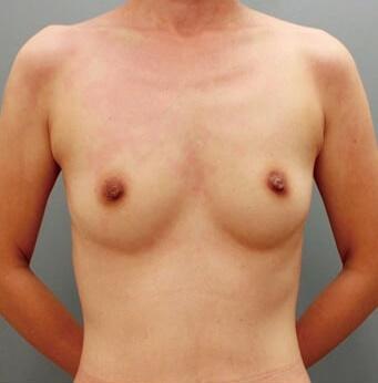 銀座みゆき通り美容外科の豊胸手術(胸の整形)の症例写真[ビフォー]