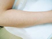 渋谷フェミークリニックの医療レーザー脱毛の症例写真[ビフォー]