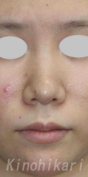 樹のひかり 形成外科・皮ふ科の鼻の整形の症例写真[ビフォー]