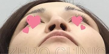 東京ゼロクリニック銀座の鼻の整形の症例写真[ビフォー]