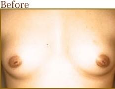 共立美容外科・歯科の乳首・乳輪の整形の症例写真[ビフォー]