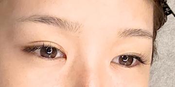 東京イセアクリニック 渋谷院のアートメイクの症例写真[ビフォー]